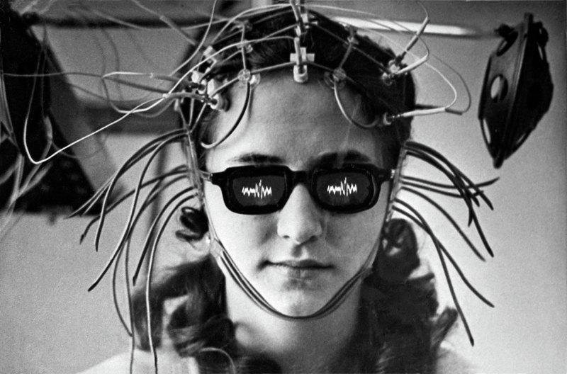 Лечение болезней мозга спомощью вживленных электродов пометоду академика АМН СССР, нейрофизиолога Натальи Бехтеревой. Расшифровка биотоков.1975 год