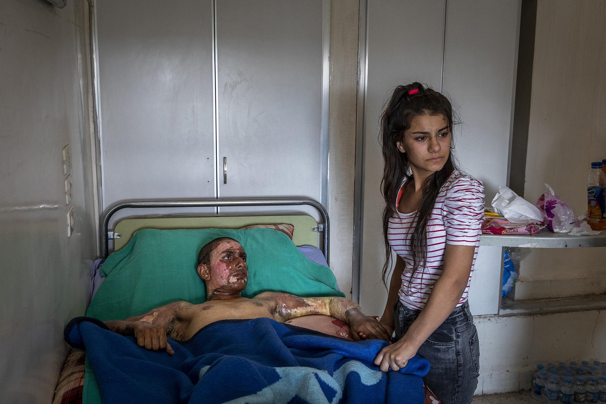 Раненный боец курского отряда самообороны Ахмед Ибрагим
