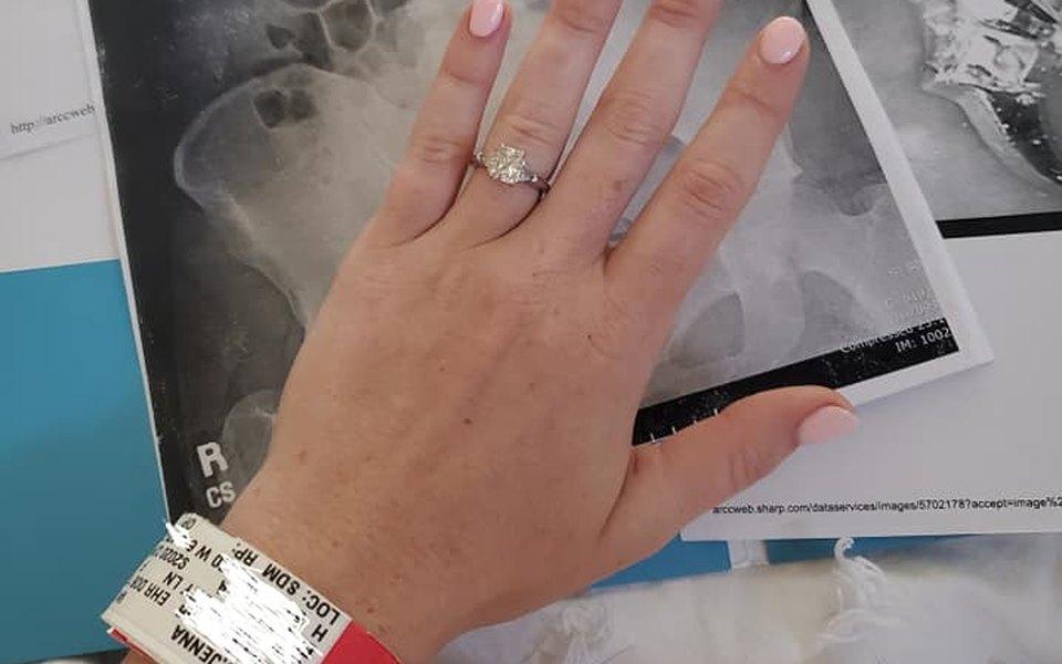 Подруга проглотила кольцо с бриллиантом